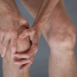 Knee Arthritis Slowing You Down?