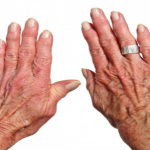 3 Hand and Wrist Exercises for Rheumatoid Arthritis